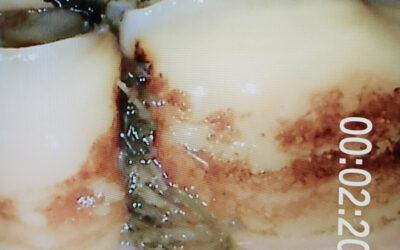 Diastasen groot risico voor paardengebit